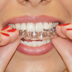 Стоматологические каппы для отбеливания зубов CD48