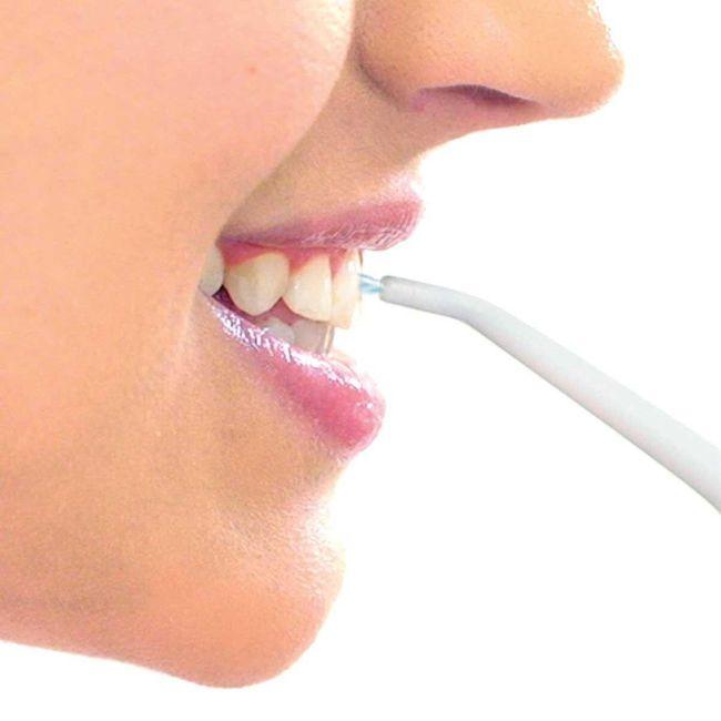 Oralni tuš usta 1