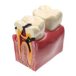 Stomatologický model zubu - stolička