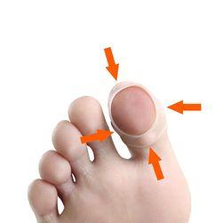 Korektor wrośniętych paznokci SIL5